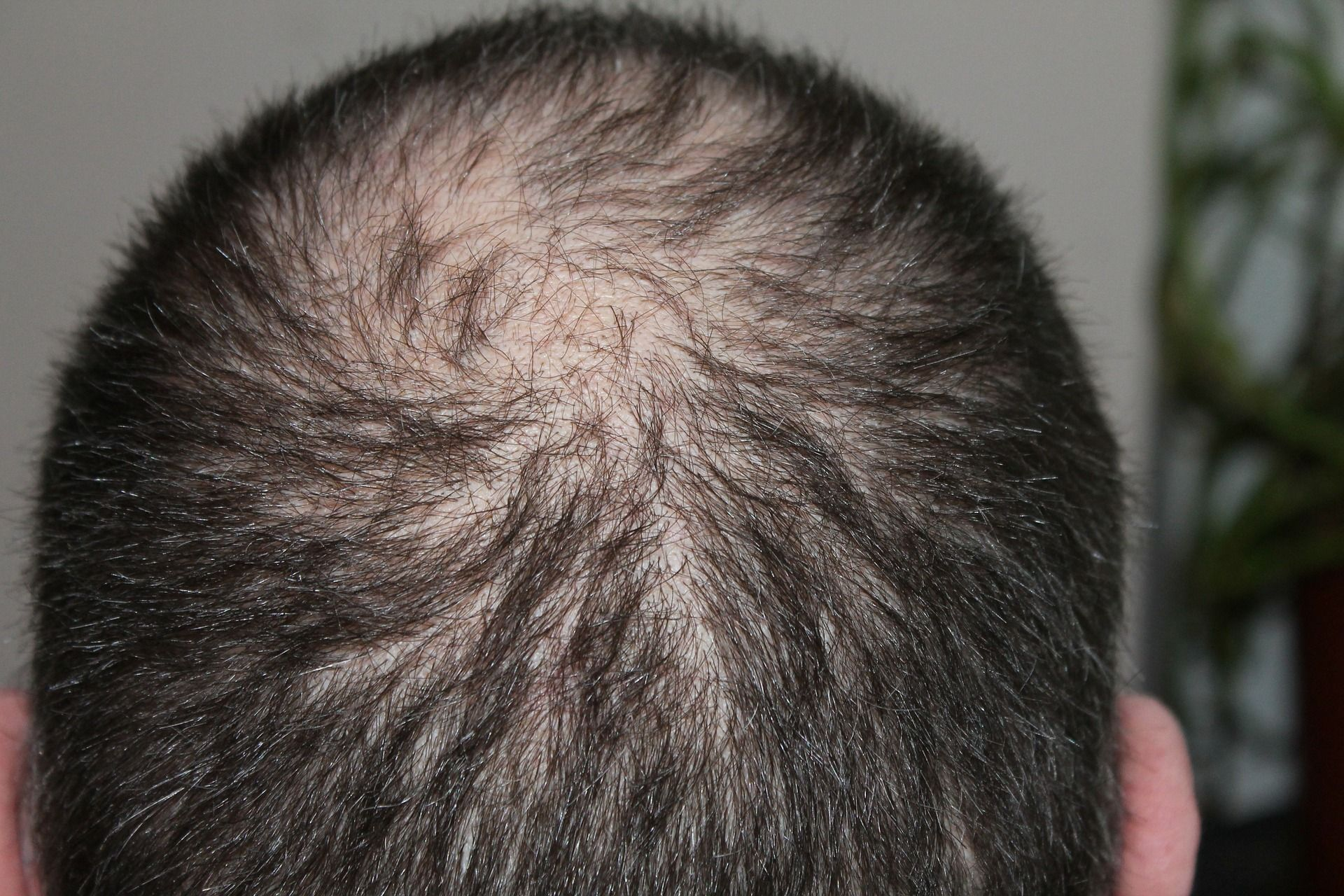 The Stem Cell Hair Transplant May Change the Future of Hair Regrowth
