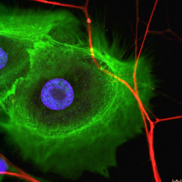 Stem cells and nerves interact in tissue regeneration and cancer progression